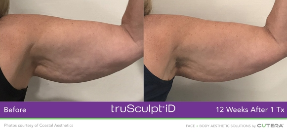 truSculpt-iD-arm