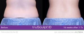 truSculpt-iD-Love Handles