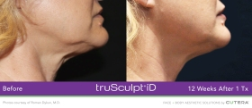 truScupt-iD-neck